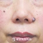 【ほくろ除去(切開)|AR5849】大きなホクロも切除でスッキリ小鼻にの症例