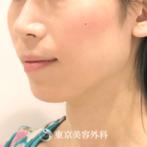 【Vライン形成(下顎角形成術、オトガイ形成)|TA1341】エラの張りを無くしシャープな輪郭にの症例