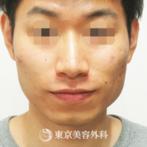 【下顎角形成、外板切除、削り|ST1399】強くゴツゴツしたエラを柔らかくの症例