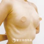 【豊胸(バッグ挿入)|SI7258】丸みを帯びたハリのある大きなバストにの症例