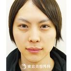 【眼瞼下垂、目の上のたるみ取り、目頭切開、ヒアルロン酸涙袋、小顔えらボツリヌストキシン|si1518】華やかで大きな目元にの症例