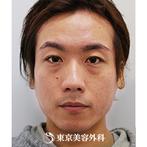 【鼻・頬・顎ヒアルロン酸|si1777】注射だけで立体的な凛々しいお顔にの症例