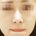 【鼻尖形成 鼻中隔延長 耳介軟骨移植 小鼻縮小|gq10188】の症例