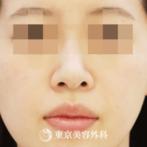 【鼻中隔延長・鼻尖形成・オーダープロテ・小鼻縮小|gq13661】の症例