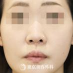 【鼻オーダーメイドプロテーゼ|gq14058】の症例