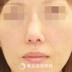 【鼻尖形成+プロテ抜去(他院修正)+ダーマルファット|gq3858】の症例