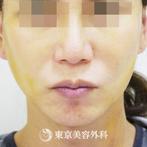 【フェイスリフト+こめかみリフト|gq3706】の症例