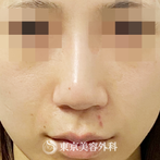 【 鼻尖形成(耳介軟骨、鼻尖縮小、陣中短縮、エラボト)|ak4605】の症例