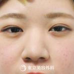 【二重埋没3点+脱脂|ak5947】の症例