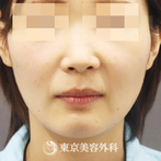 【エラ削り|ta2524】の症例