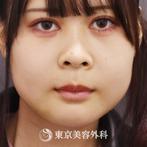 【骨切り 顎矯正|ta2586】の症例