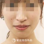 【顎矯正手術|ta3103】の症例