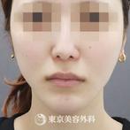【顎矯正手術、 親知らず抜歯3本|ta3229】の症例
