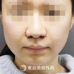 【Vライン形成、外板切除、バッカルファット、咬筋切除|ta3277】の症例