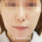 【フェイスリフト|gq11903】の症例