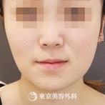 【バッカルファット|gq12843】の症例