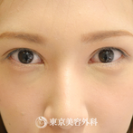 【目の上たるみ取り|gq3919】の症例