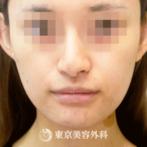 【エラ骨切り 口外法|gq5492】の症例