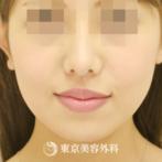 【エラ骨切り|gq6834】の症例