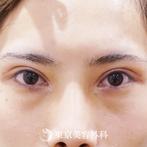 【二重全切開、目の上のたるみ+脂肪取り、目頭切開、涙袋ヒアルロン酸、鼻プロテーゼ、鼻中隔延長、鼻尖形成(軟骨移植)|ub3592】の症例