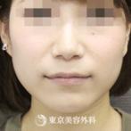 【エラ骨切り|si2331】の症例