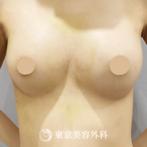【豊胸リオペ ベラジェル 血腫除去|si8070】の症例