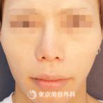【 小鼻縮小内側切開、鼻尖形成(軟骨移植)、鼻プロテーゼオーダー、 埋没スタンダード4点|tn944】の症例
