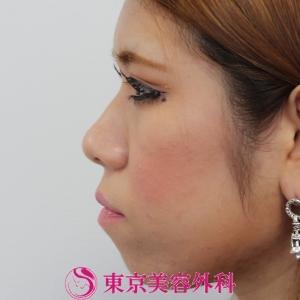 整形 バレ ない 鼻