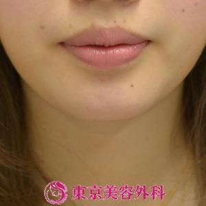 美容整形 顎 プロテーゼ