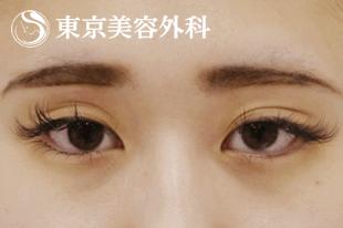眼瞼下垂の治療をすることで、頭痛や肩こりの症状が軽減する可能性があります。