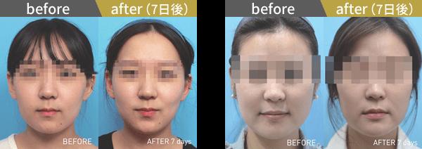 東京美容外科クリニックのBNLS注射(小顔注射)の症例写真