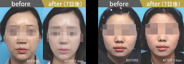 東京美容外科クリニックのBNLS注射(小顔注射)の症例写真2