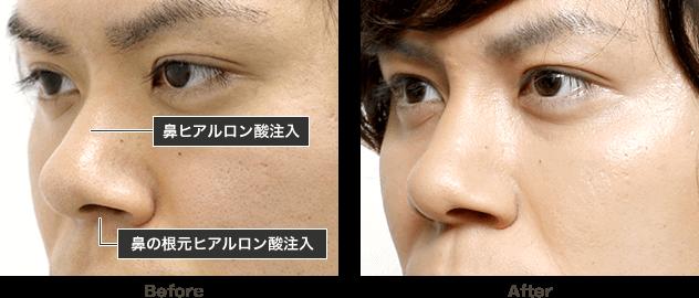 鼻 を 高く する 方法 男