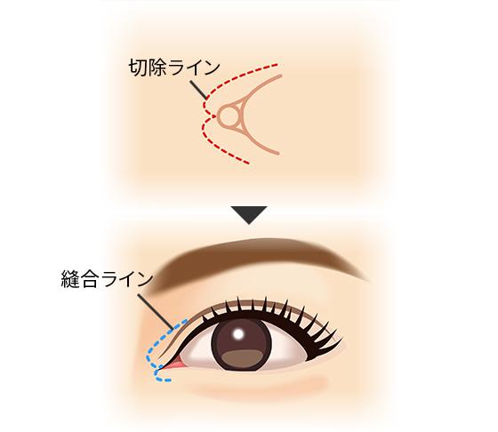 丸い 目頭 蒙古ひだがあると、平行型の二重にならないって本当?