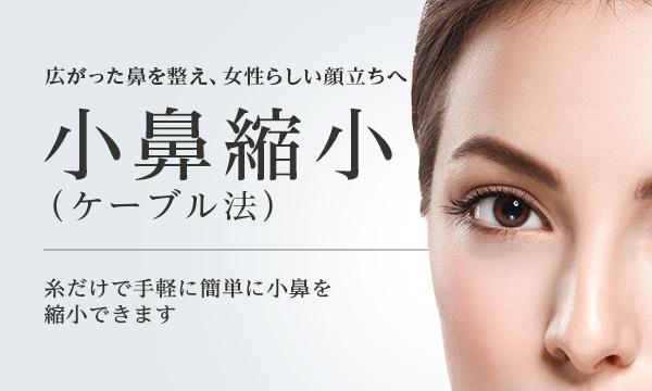 ケーブル法(小鼻縮小)   美容整形は東京美容外科